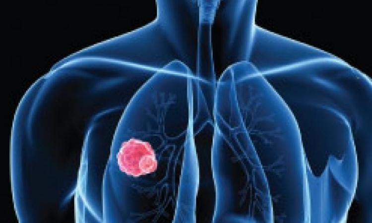 Štetnost zračenja raka