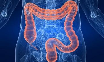 Kako pročistiti debelo crijevo, dr Šulc