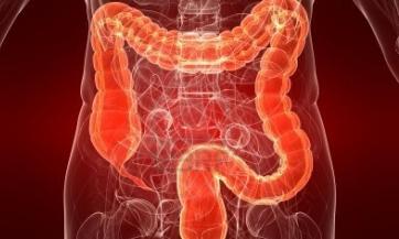 Liječenje bolesti debelog crijeva na prirodan način, Nikola Marković