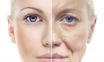 Kako usporiti starenje?