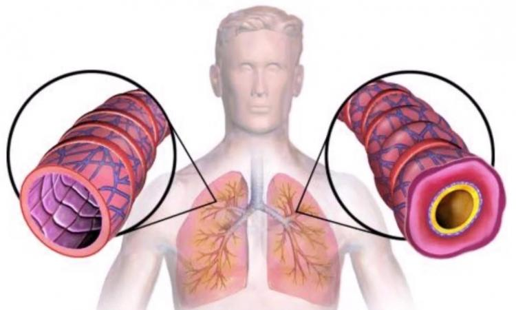 Liječenje astme i bronhitisa na prirodan način, Milan Ivović
